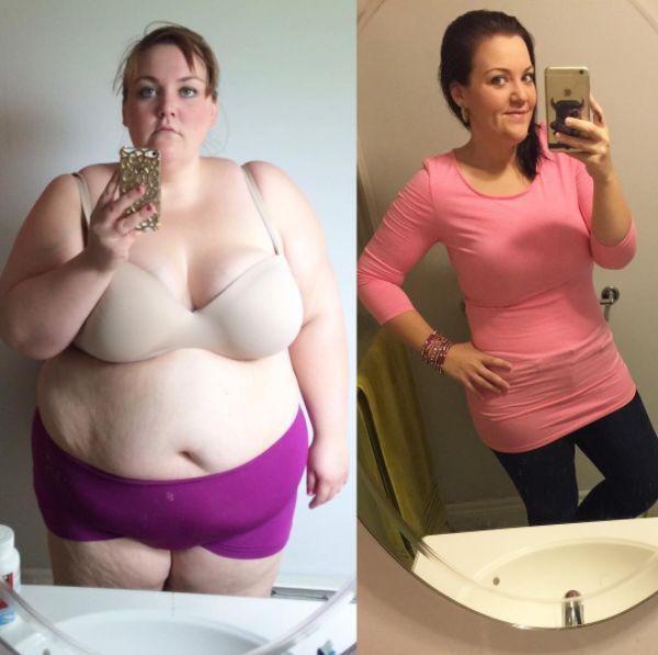 Операция на желудке в целях похудения