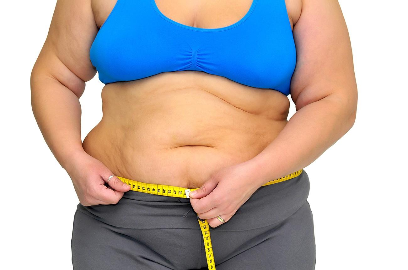obesity belly fat - Что такое ожирение и чем оно вызвано?