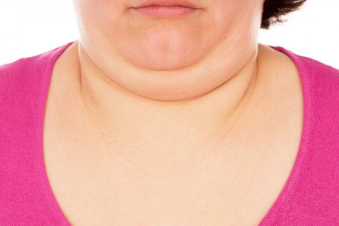 Как убрать жир на шее естественно: советы, диета и упражнения.