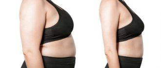 Операция для похудения – виды, безопасность, преимущества и побочные эффекты